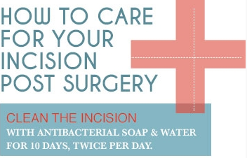 How To Care For Your Incision Post Surgery