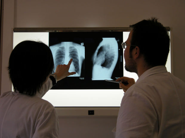 doctors looking at chest xray
